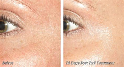 microneedling before and after photos cosmetic