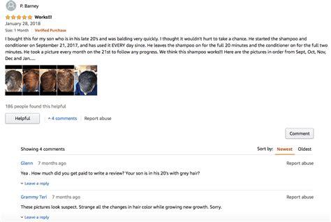 shapiro md shampoo review    scam  honest hair loss reviews