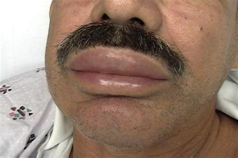 Angioedema Pictures angioedema hereditary symptoms causes pictures