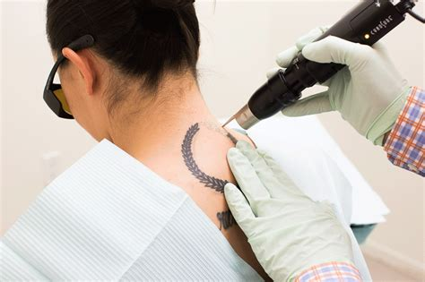 getting a tattoo removed cost removal here s what no one tells you about the