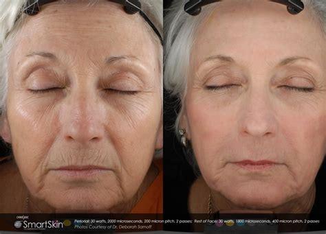 tattoo removal mobile al laser skin resurfacing co2 rejuvenation advanced