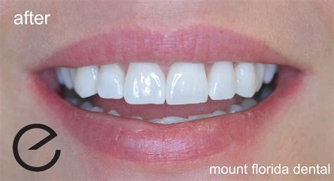 enlighten tooth whitening