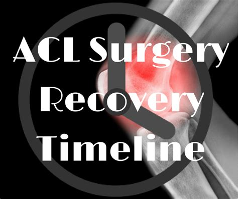 acl surgery recovery acl surgery recovery timeline sports knee therapy
