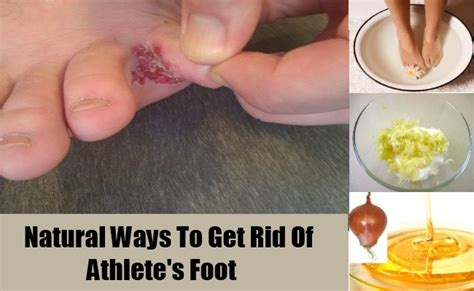 how to get rid of your athlete s foot home