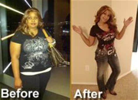 gastric bypass testimonials success stories with before texas bariatric specialists announced today a break