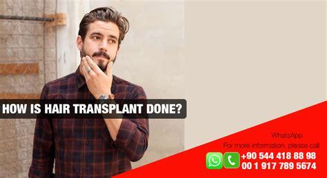 how is loop hair transplant done how is loop hair transplant done hair transplant surgery