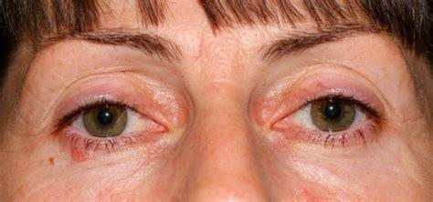 eyelid tumor image gallery eyelid cancer