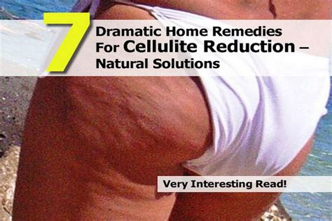 7 dramatic home remedies for cellulite reduction
