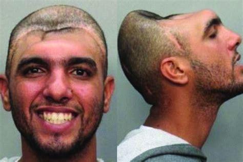 Meet The Half Head Man As He Explains Why He Has Half A Head Video   meet the half head man as he explains why he has half a