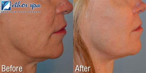 combining ultherapy and sculptra for longer lasting results
