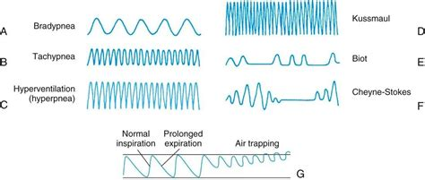 breathing pattern video agonal breathing pattern related keywords agonal