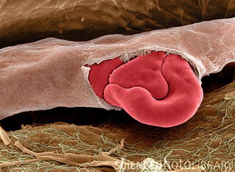 rottura vasi capillari 25 amazing electron microscope images top design