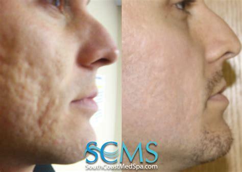 laser acne scar removal san diego los angeles south