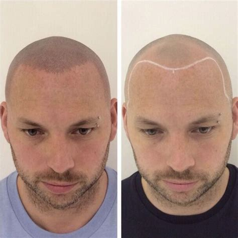 scalp micropigmentation to make hair ticker pictures 18 best images about before and after scalp micro