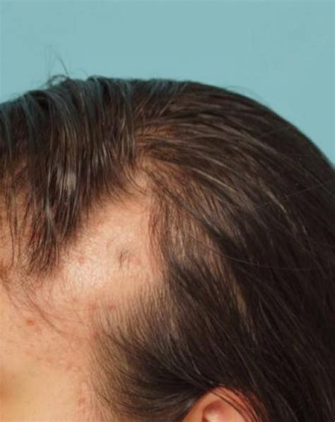 Types Of Hair Loss In Females by Hair Loss In Types Causes And Myths Healdove