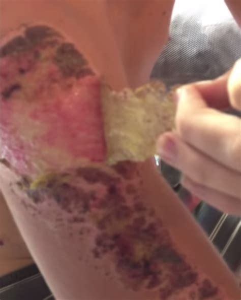 if you can watch this video of a massive scab being pulled