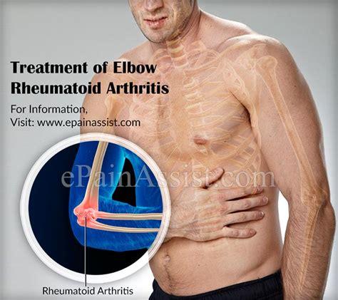 best treatment for rheumatoid arthritis rheumatoid arthritis causes symptoms treatment