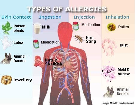 what to do for allergies allergies types symptoms causes risk factor and treatments