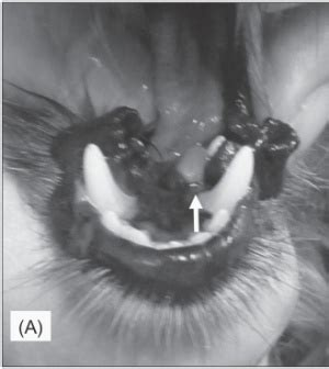 gingival hyperplasia in dogs epulis