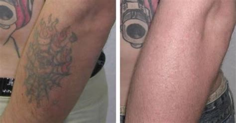 laser tattoo removal infection laser removal philadelphia king of prussia pa