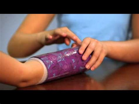 Decorate Your Cast by Shrinkins How To Decorate An Arm Cast