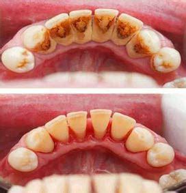 Biaya Pembersihan Karang Gigi Di Dental Pembersihan Karang Gigi Dan Stain Dengan Teknologi Terbaru