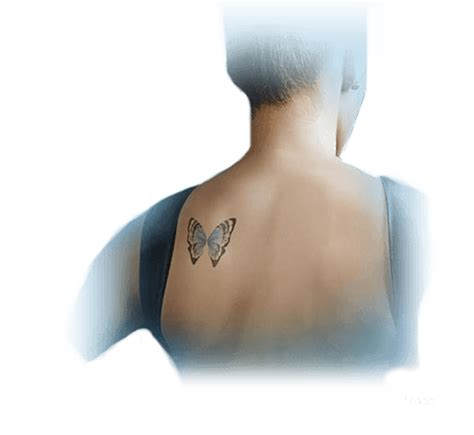 picosure laser tattoo removal beverly hills ca erase tattoos