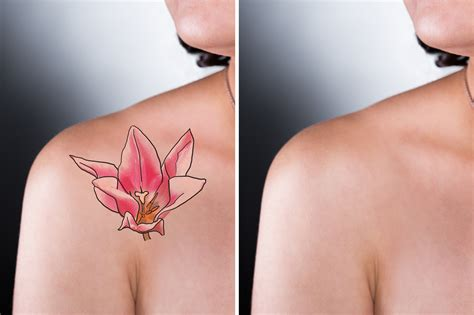 tattoo removal app 4 major points to be considered before a removal
