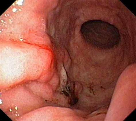 Pipe Kandila File Stomach Cancer Jpg Wikimedia Commons