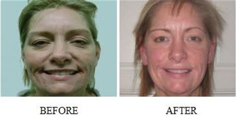 led light therapy before and after pictures led treatment before and after