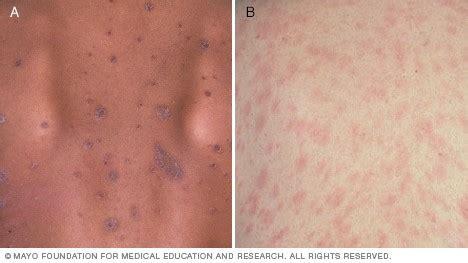 christmas tree virus rash rash 101 the 5 most common types of skin rashes premier dermatology