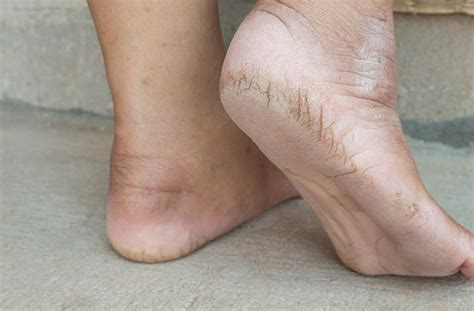 celebrity dry feet 5 home remedies for dry cracked heels