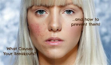 Acne Advice Blemish Free Skin by Pimples Blemishes And Acne