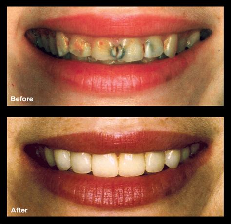 dental bonding broken decayed teeth signature smiles ga