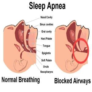 home remedies for sleep apnea the