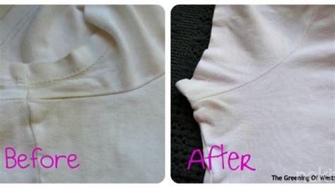 Pemutih Baju trik menyulap baju bayi yang ternoda kembali putih