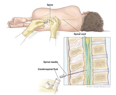 spinal tap c section image gallery lumbar puncture