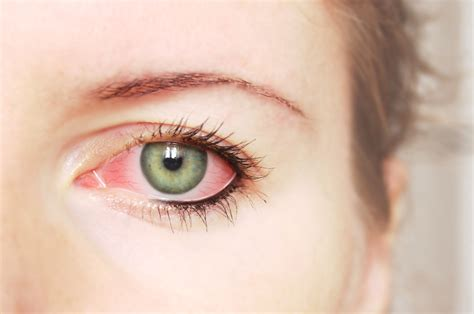 symptoms of pink eye pink eye causes and treatment