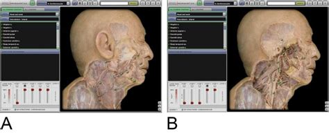 anatomy book with cadaver pictures the digital age of medicine cadavers still best choice