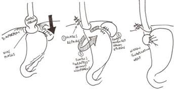 Nissan Surgery Laparoscopic Nissen S Fundoplication And Hiatus Hernia