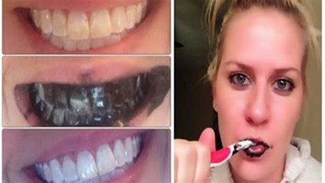 guaranteed teeth whitening   week healthy food house