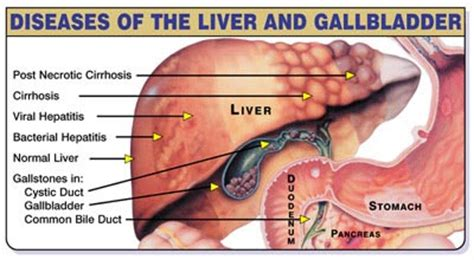 Liver Detox With No Gallbladder by Liver Gallbladder Flush Conners Clinicconners Clinic