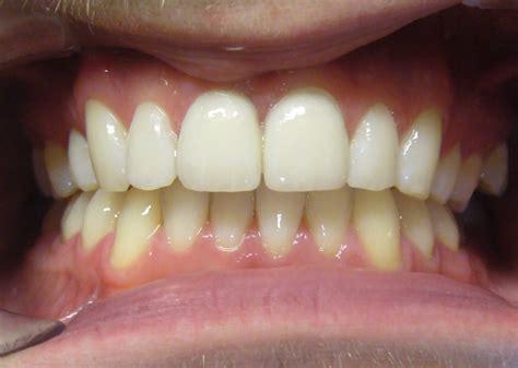 11 best porcelain veneers images porcelain veneers dentist in kensington