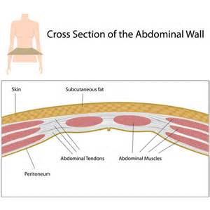 cesarean adhesions symptoms answers on healthtap