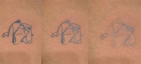 tattoo removal fort lauderdale 28 removal fort lauderdale bruce bart