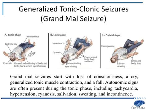 Detox Grand Mal Seizure by Epilepsy A Modern Day Perspective