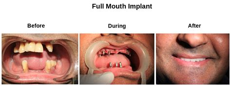 comfort dental root canal cost best dental implants in india full mouth rehabilitation