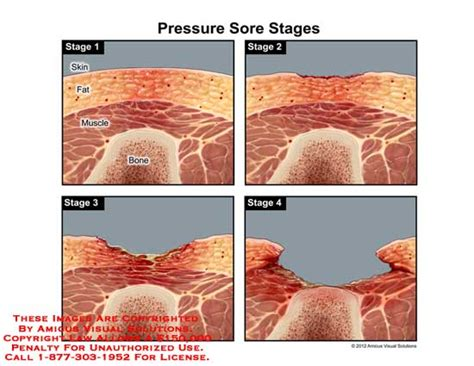 Bed Sore Stages by Different Stages Of Pressure Ulcers Pictures To Pin On