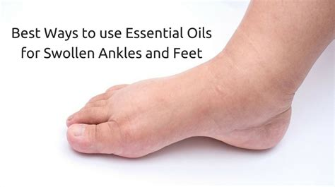how long will my feet be swollen after c section best ways to use essential oils for swollen ankles and feet