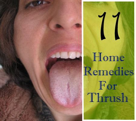 11 home remedies for thrush in adults treatments